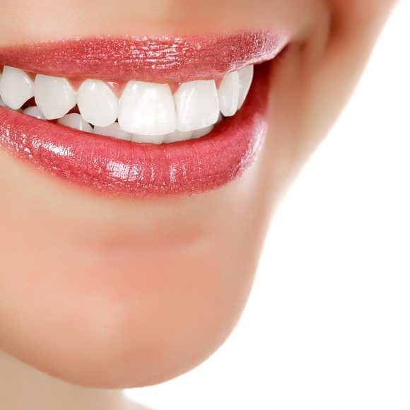 How to Prevent Dental Caries